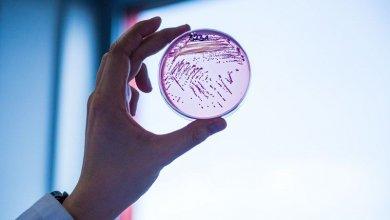 Infektionsforschung an der JLU.