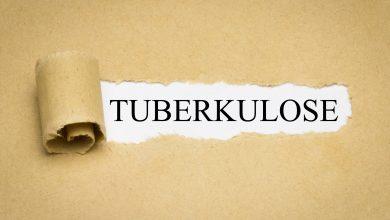Tuberkulose