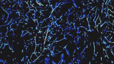 Mikroskopische Darstellung des dichten Netzes von Blutgefäßen in einem wachsenden Tumor. Quelle: La Porta, DKFZ