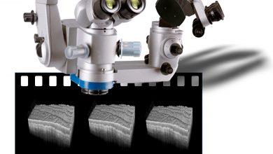 Kopf eines Operationsmikroskops, über den 3-D OCT-Hirngewebeaufnahmen mit Videorate in Echtzeit aufgenommen werden sollen. Quelle: Neuro-OCT.