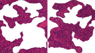 Schnitt durch Brustkrebsgewebe: Wenn Immunzellen (kleine dunkle Zellen) in den Tumor einwandern, haben Brustkrebspatientinnen gute Chancen, dass die Chemotherapie anschlägt. Das linke Bild zeigt hauptsächlich Tumorzellen (runde violette Zellen). Auf der rechten Seite sieht man, wie körpereigene Abwehrzellen (tumor-infiltrierende Lymphozyten, TILs) den Tumor infiltrieren. Quelle: © S. Wienert, C.Denkert, Charité