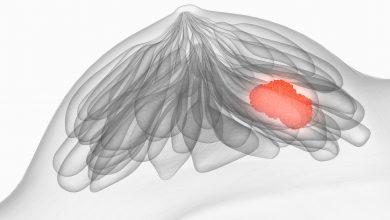Brustkrebs Mammographie llustration. Foto: © Axel Kock - Fotolia.com