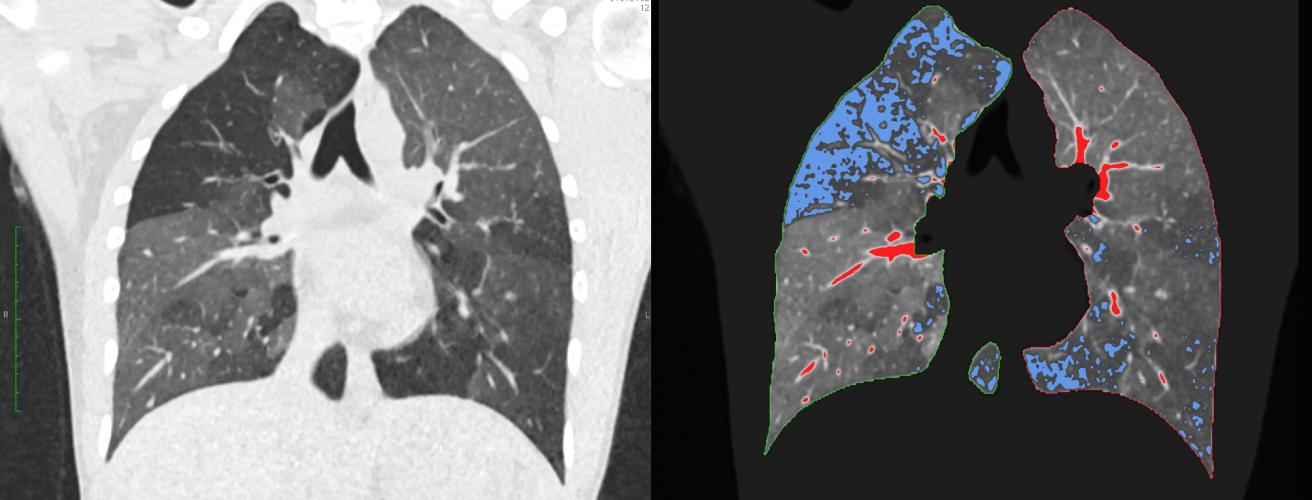 Röntgenkongress: Neuronales Netz blickt tief in die Lunge - Biermann ...