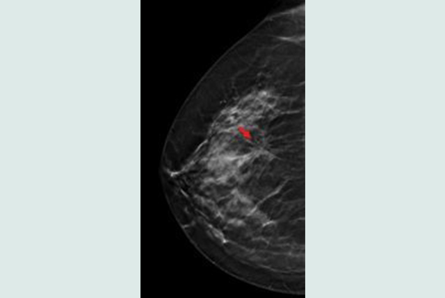 Tosyma Studie Untersucht Einfluss Der Tomosynthese Beim Brustkrebs
