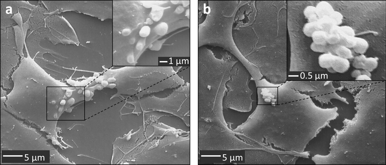 Bislang Unbekannten Mechanismus Der Blut Hirn Schranke Entdeckt