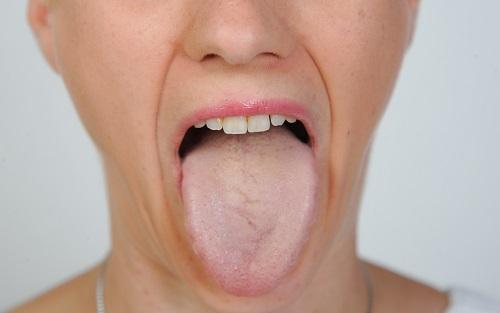 Zunge Zunge
