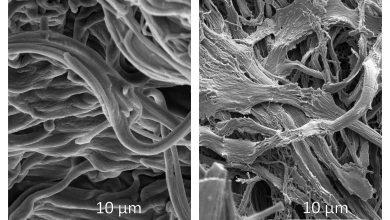Elastinfasern der Haut