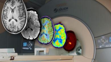 human brain fmri pet, Foto: © Forschungszentrum Jülich